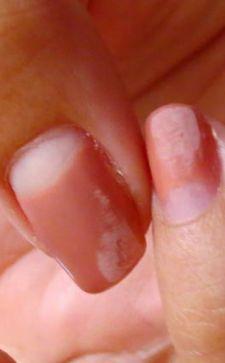 Почему отслаивается гель-лак от ногтей: причины и особенности