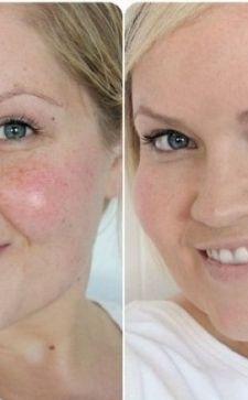 Средство для выравнивания кожи лица: находим самые эффективные