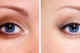 Крем от темных кругов под глазами: лучшие бьюти-продукты по версии косметологов