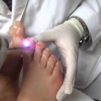Лазерная коррекция вросшего ногтя