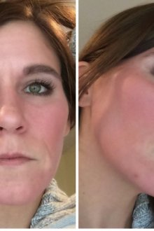 Как ретинол действует на кожу