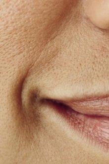 Крем, сужающий поры на лице