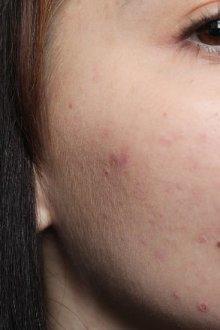 Особенности кожи с большими порами