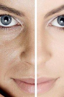 Уход за кожей при широких порах