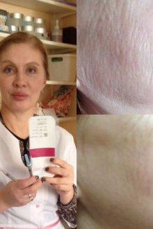 Свойства, строение гиалуроновой кислоты и ее роль в коже