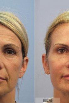 Гиалуроновая кислота для лица: применение в эстетических целях