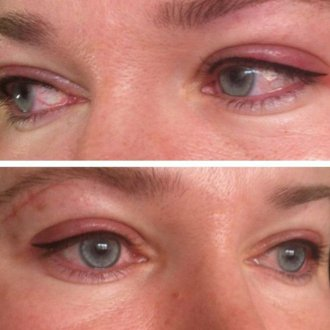 Как выглядят глаза после процедуры