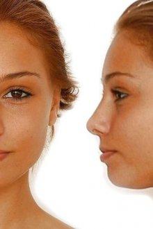 Пептиды в антивозрастной косметологии