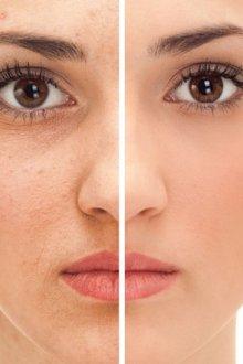 Зачем выравнивать кожу на лице
