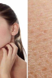 Тип кожи – сухая